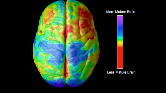 Differences in Brain Structure for People With ...